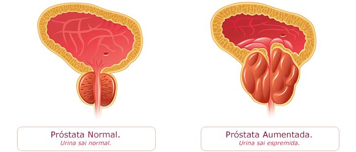 Hiperplasia-prostática-benigna-(HPB)